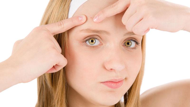 Il sebo in eccesso, una delle principali cause dell'acne